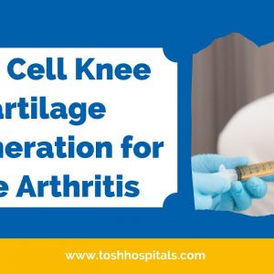 Stem Cell Knee Cartilage Regeneration for Knee Arthritis| Best Orthopaedic Hospital| Tosh Hospital