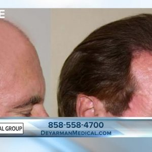Dr. James Deyarman explains why stem cell treatments may work for you instead of hair transplants