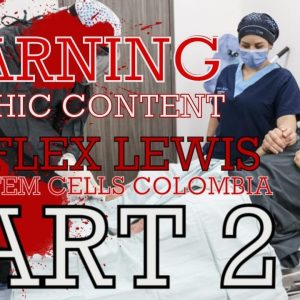 Stem cell treatment Flex Lewis in Colombia Medellin. Part 2